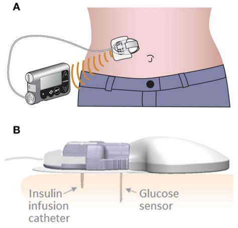 insulin pumps and continuous glucose monitoring books newsflash new dual diabetes device from medtronic