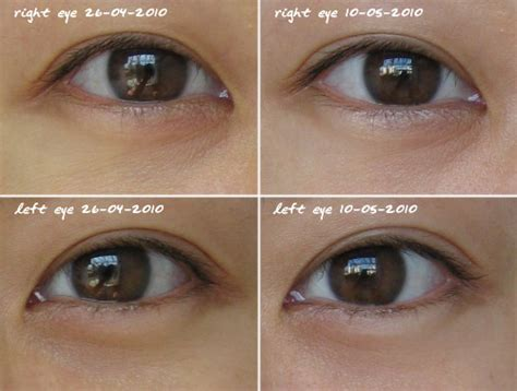 Diskon Kiehls Midnight Recovery Eye Kiehl S Midnight Recovery Eye How To Use Customer