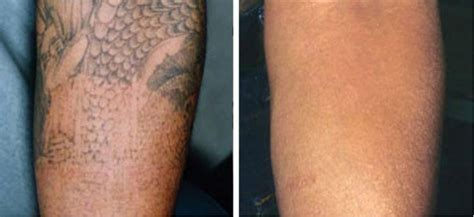 northeast laser tattoo removal conbio c6 medlite laser treatments before and after