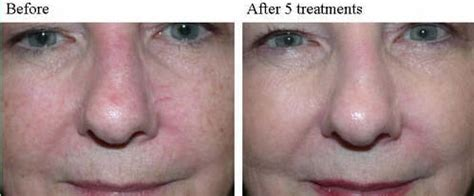 ipl treatment dallas photofacial skin rejuvenation