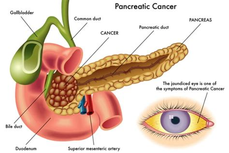 pancreatitis recovery time common pancreatic disorders pancreas surgeon dr fraiman