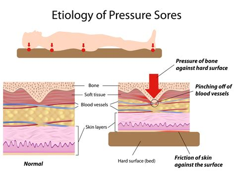 bed soars pressure ulcers bed sores health life media
