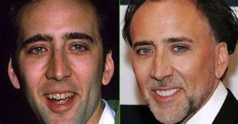 matthew rhys teeth nicolas cage teeth before after cosmetic dentistry smile