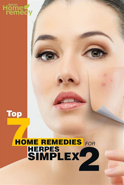 top 7 home remedies for herpes simplex 2