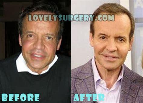 louis licari plastic surgery before louis lacari s bad plastic surgery louis licari plastic