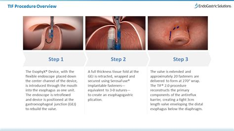 tif procedure transoral incisionless fundoplication