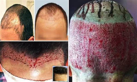 hair transplants  wrong daily mail