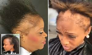 sew in weaves hairstyles for women with alopecia in dc atlanta hairstylist shares videos of clients suffering
