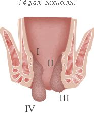 emorroidi interne quanto durano la malattia emorroidaria redazione sanitaria