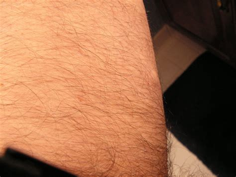 acceptable male pubic hair length the pubic hair proper length of pubic hair precocious pseudopuberty