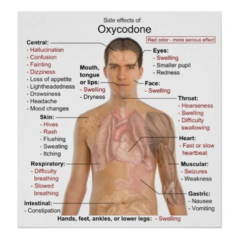 How To Detox From Oxycontin Naturally by Chart Of The Side Effects Of Oxycodone Zazzle