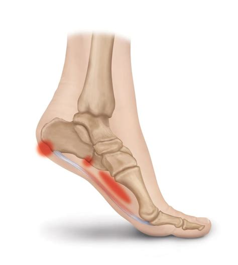 Plantar Fascia Ligament Pain Conditions Heel That Pain What Causes Planters Fasciitis