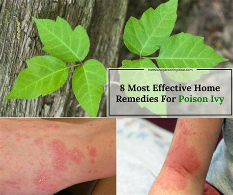 most effective poison poison home remedies 8 most effective remedies for poison home and