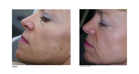 westmont brown spot removal ipl treatment
