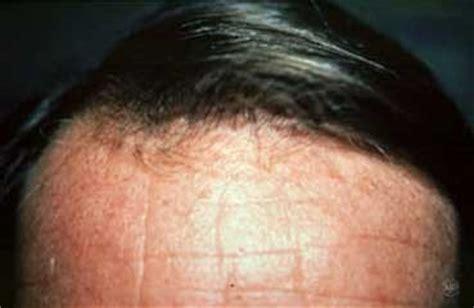 Bantalan Senderan Kepala 3 In 20 nico personal rambut rontok diagnosis pengobatan