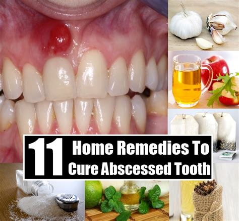 11 home remedies to cure abscessed tooth diy home things