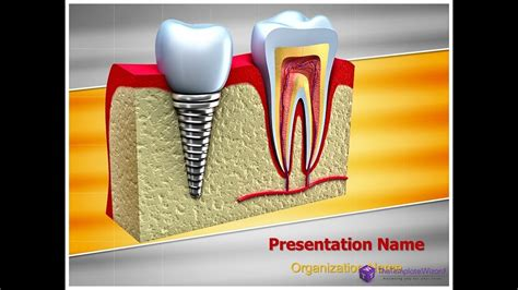 Dental Implant Teeth Powerpoint Template Thetemplatewizard Youtube Free Animated Dental Powerpoint Templates