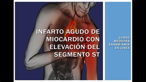 infarto del miocardio infarto agudo al miocardio con elevaci 211 n del st youtube