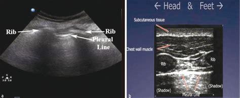 Baron Lung pneumothorax m 233 decine tactique citera 69 baron desgenettes