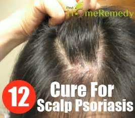scalp psoriasis home remedies scalp psoriasis cure driverlayer search engine