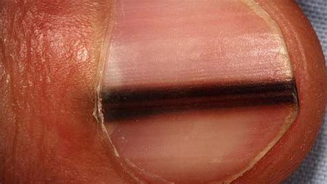 dark line on fingernail black line on the nail causes treatments and pictures