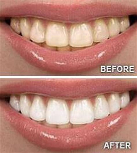 oil pulling     pictures  health