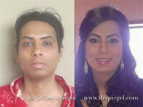 mtf ffs facial feminization surgery before and after facial feminization surgery a rebirth for transgender