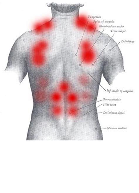 schmerzen im rechten bein beim liegen r 252 ckenschmerzen verspannung grund arbeit sitzposition