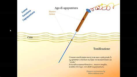 agopuntura pavia digitopressione per il mal di schiena e cervicalgia