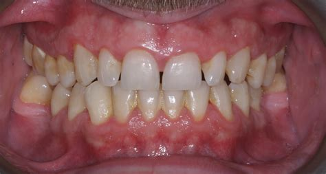 stained teeth treatments alma dental practice