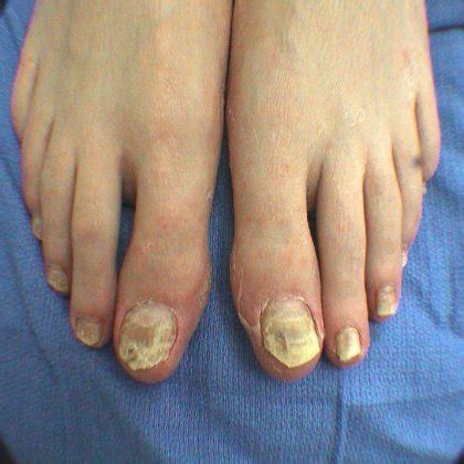 how to treat toe fungus treat toe fungus effectively