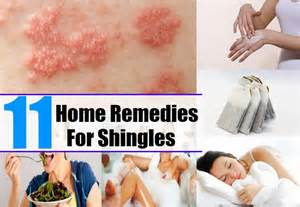 remedies for shingles