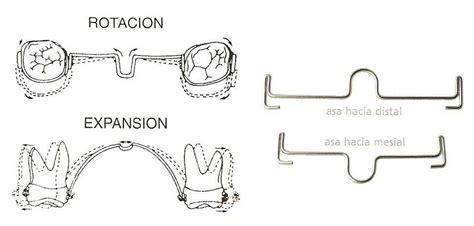 barra transpalatina superior ortodoncia aparatos fijos erase una higienista