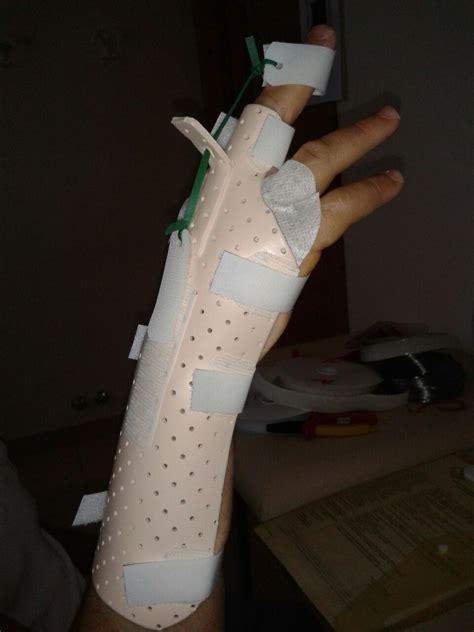 cup volta mantovana patologie della mano splint personalizzati ospedale