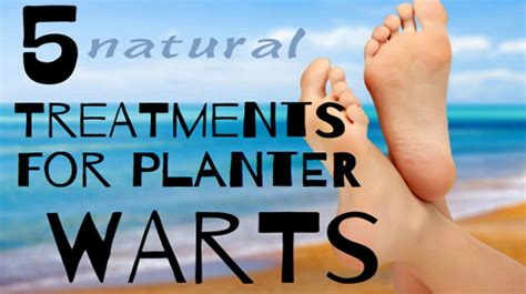 how to treat a planters wart how and why to treat plantar warts naturally 5 ways