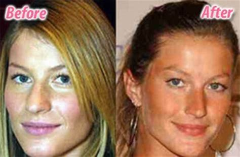 blake scarlett gisele and more celebs plastic surgery stars before and after plastic surgery 47 pics