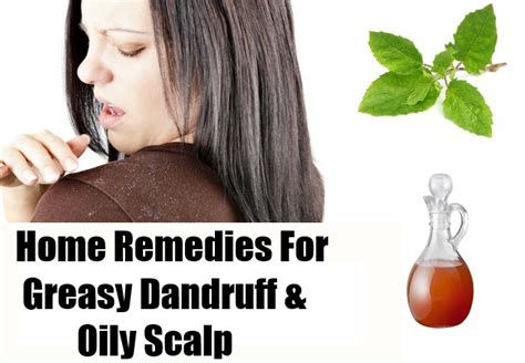 home remedies for greasy dandruff and scalp tips to