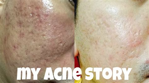 i got rid of all my deep rolling acne scars with msm cream my acne story fractional co2 derma roller acne scars