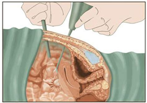 no period after c section and tubal girlshopes