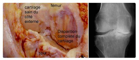 condropatia femoro tibiale interna gonarthrose centre orthop 233 dique pasteur lanroze