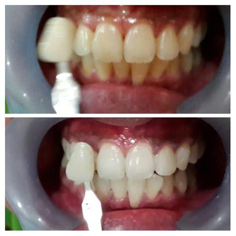 Biaya Pemutihan Gigi Bleaching pemutihan gigi bleaching audy dental 5 audy dental