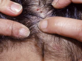 do bed bugs go in your hair effectively treat get rid of lice lice busters