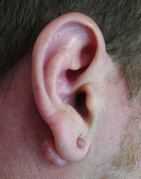 keloid under tattoo doctors gates keloids of the auricle
