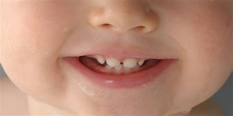 baby teeth how to keep children s teeth safe a q a with the dental association
