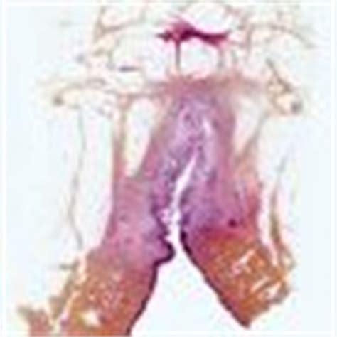 pilonidal cyst histology pilonidal sinus humpath com human pathology