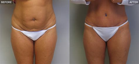 Plastic Surgery After C Section by Abdominoplasty Tummy Tuck Before After Photos