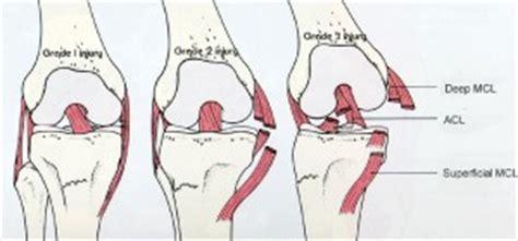 hip knee advice 187 ligament tears
