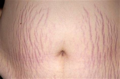 Miller Has Stretch Marks And Cellulite by Wear Your Stretch Marks Scars And Cellulite With Pride