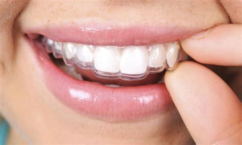 imagenes reales invisalign kentucky orthodontics invisalign up to 92 off