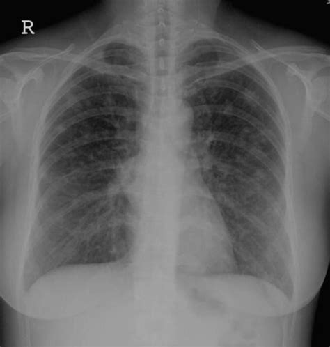 Multiplek Lung the chest x revealed pulmonary nodular les open i
